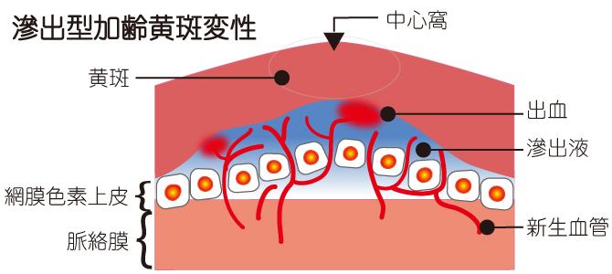滲出型加齢黄斑変性